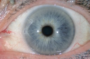 Blue (Lymphatic) Iris
