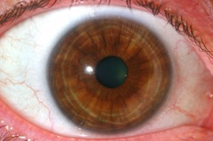Brown (Hematogenic) Iris