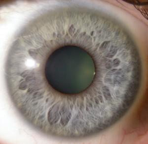 hormonal_eye
